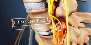 When Surgery is the Right Treatment for Your Herniated Disc